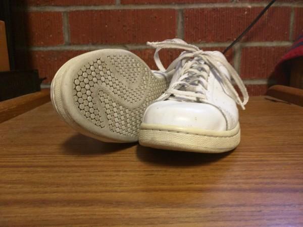 小白鞋越穿越黄怎么办?